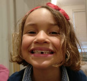 girl smiling with lost teeth