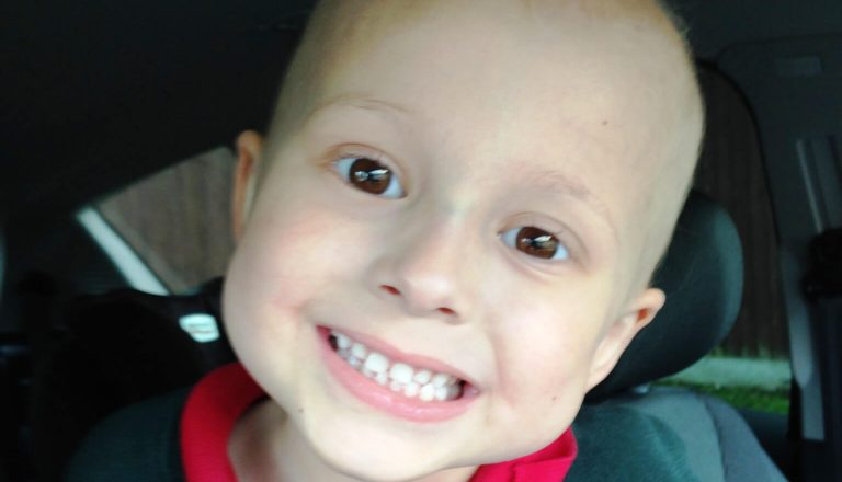 A child who started limping due to cancer