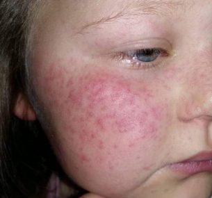 Girl with shingles