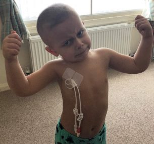 Boy with central line showing arm muscles